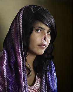 bibi aisha disfigured taleban