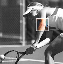 Tennis Elbow? Try This