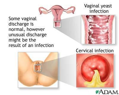 A Look At Vaginal Discharge: Normal Or Not ?