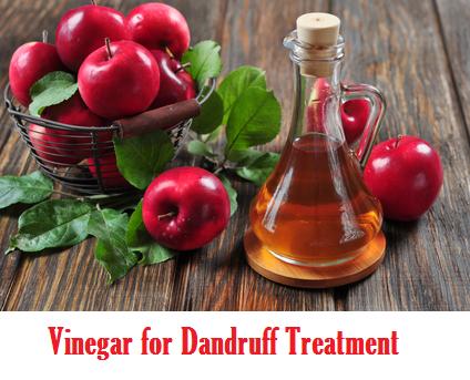 vinegar for dandruff