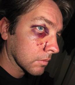 Punchlines: comics getting beaten up