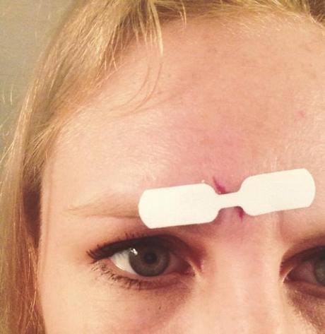how I treated 2 stitches-worthy wounds from home
