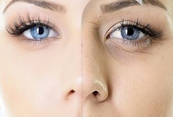Top 10 Anti Aging Skin Care Solutions with Natural Remedies