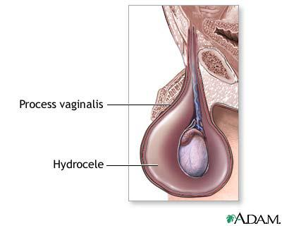 You Got To Know About Hydrocele!