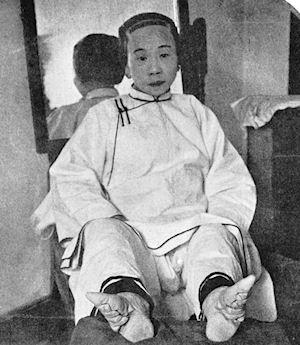 The Agony Of Chinese Foot Binding