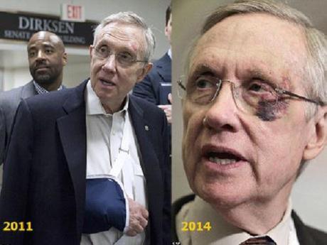 Reid's injuries 2011 & 2014