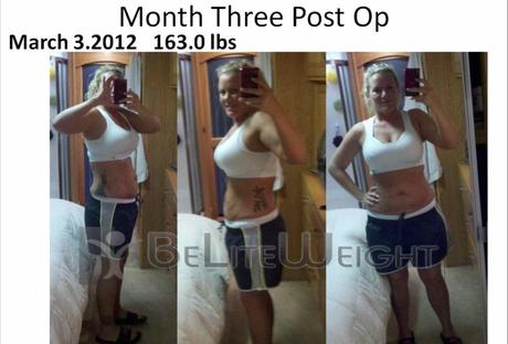 Stephanie S Gastric Sleeve Weight Loss Journey Paperblog