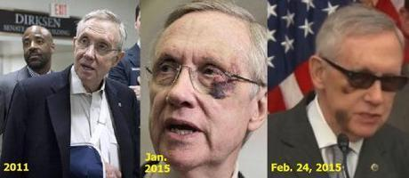 Harry Reid injuries