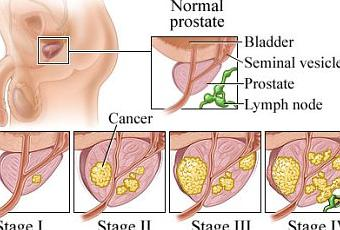 characteristics causes and treatment of cancer