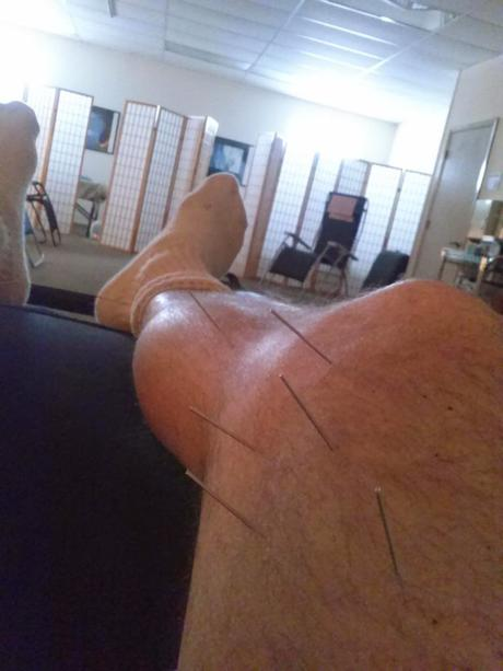 Acupuncture for Runners?