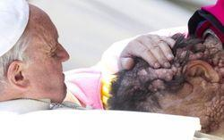 Pope-Francis-Disfigured-Man