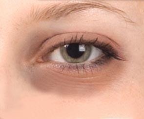 Ten Best Eye Creams for Dark Circles and Wrinkles