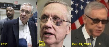 """Rush Limbaugh: What I heard about Harry Reid's """"exercise"""" injuries"""
