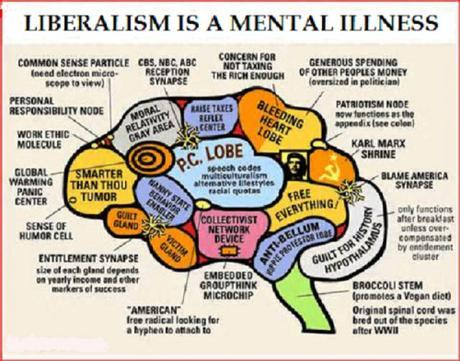 brain of the left