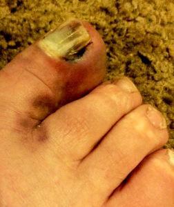 My damaged big toe