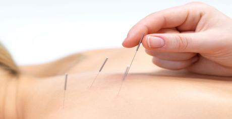 Acupuncture and Male Fertility in Dublin
