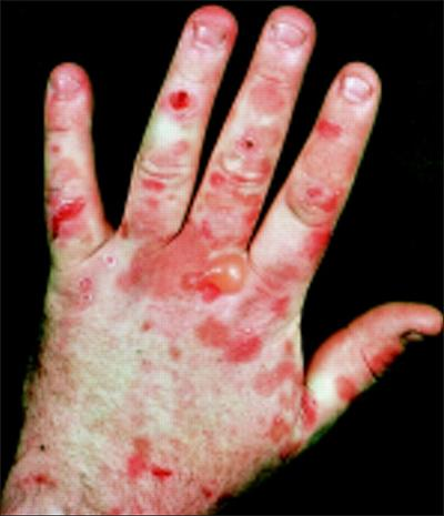 porphyria symptoms causes and treatment Learn more about porphyria causes, sign and symptoms, treatment and diagnosis at findatopdoc read more information on homeopathic remedies, risks, and prevention.