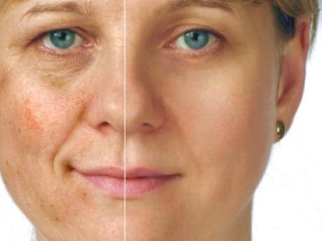 Hyperpigmentation-and-yourskin-all-you-want-to-know