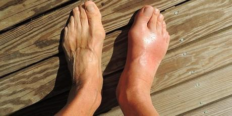 home remedy for gout