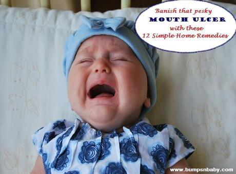 12 Home Remedies for Mouth Ulcer in Babies and Kids