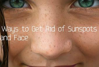 Is There A Natural Way To Get Rid Of Sunspots