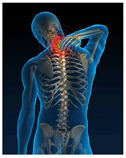 Herbal Remedies for Cervical Spondylitis