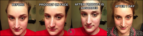 At home facial peel review images 926