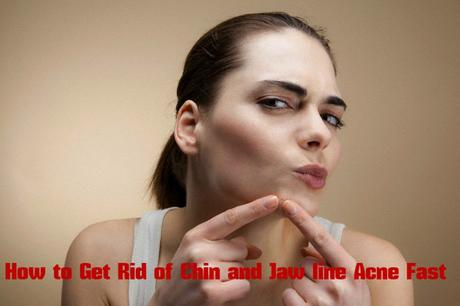 How To Get Rid Of Chin And Jaw Line Acne Fast Paperblog