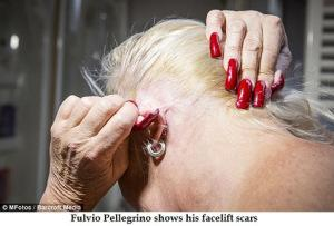 Fulvio Pellegrino shows his facelift scars