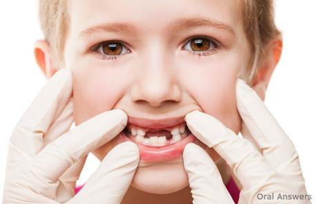cavities_in_baby_teeth_fillings