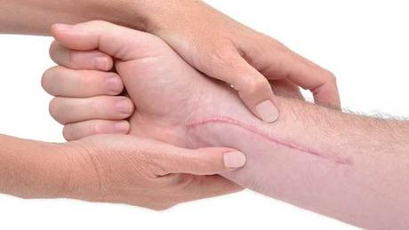 5 Natural remedies for cuts and scrapes
