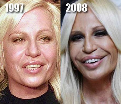 Donatella Versace before plastic surgery