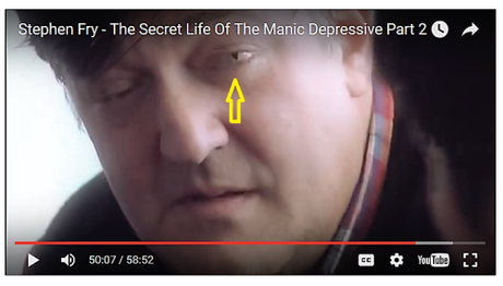 Stephen Fry's reptilian left eye