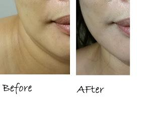 BEAUTY/CHECKOUT Firmer Skin and Restored Senses in 1 hour