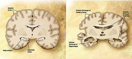 Diagram of the brain of a person with Alzheimer's Disease