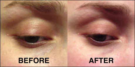 Dynamic Instant Eye Lift BEFOREafter