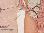 Lung Cancer- Symptoms Treatments