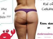 Cellulite: Busting Methods