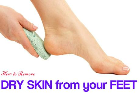 Remove Dry Skin from Feet
