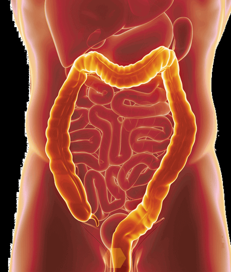 Ulcerative colitis natural remedies- Top 4 Herbs