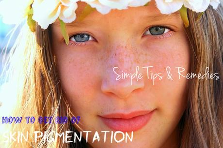 Skin Pigmentation Tips Remedies