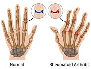 Natural Cure for Rheumatoid Arthritis