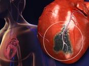 Warning Signs Heart Attack