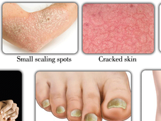 Treat Psoriasis Home-Herbal Remedies