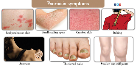 How to Treat Psoriasis at Home-Herbal Remedies for Psoriasis