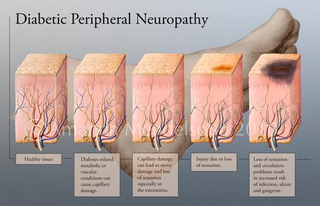 neuropathy in feet and legs symptoms