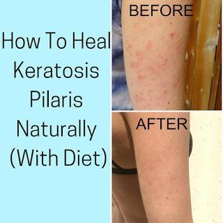 Toxic Skincare Ingredients To Avoid