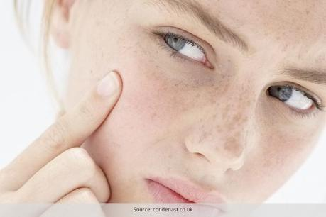 5 Diet Tips to Nourish Dry Skin