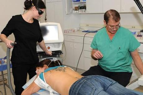 Laser Tattoo Removal Getting Rid of Tattoos: Lasering It Off
