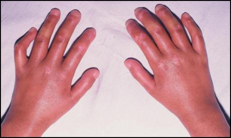 Ayurvedic Treatment for the Sharp Syndrome